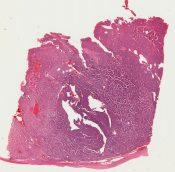 Carcinoid (Ovary) [98/19]