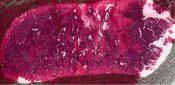 Giant cell tumor (Bone, scapula) [98/4]