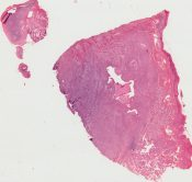 Acinic cell carcinoma (Salivary glands) [98/9]