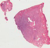 Acinic cell carcinoma (Salivary glands) [98/9]